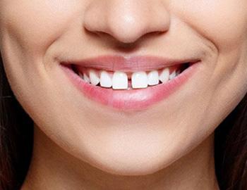 Best Dental Hospitals in Guntur | Dhruthi Clinics – Complete Oral Care